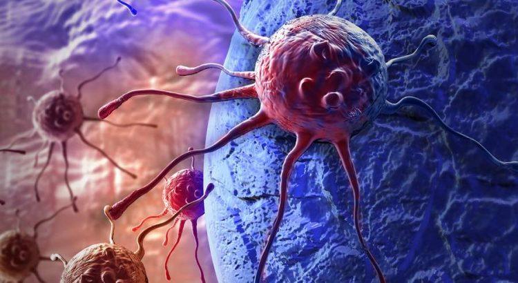 metasztatikus rákos csont túlélési arány)
