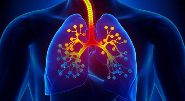 Tüdőgyulladás mellékhatások fogyás